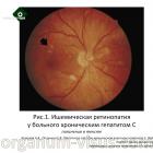 Кожухов А.А., Полунина Е.В. Патология глаз при хроническом вирусном гепатите С. Портал Орган зрения organum-visus.com (1)