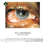 Кожухов А.А., Полунина Е.В. Патология глаз при хроническом вирусном гепатите С. Портал Орган зрения organum-visus.com (2)