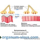 Ботулотоксин А (BTA), механизм действия (https://classconnection.s3.amazonaws.com/49/flashcards/4238049/png/screen_shot_2013-12-02_at_103838_am-142B3F637A639DA09AD.png). Офтальмологический портал Орган зрения organum-visus.ru