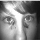 Идиопатическая гемолакрия, пациента В., 14 лет.