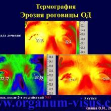 Кваша О.И. NO-терапия в офтальмотравматологии. Экспериментально-клиническое исследование. Гундорова Р.А., Чеснокова Н.Б., Кваша О.И., Шехтер А.Б., Пекшев А.В., Давыдова Н.Г., Безнос О.В., Столярова Е.П., Горбачева О.В., Косакян С.М., Сиала С. (МНИИ глазных болезней им. Гельмгольца (директор - д.м.н., профессор В.В.Нероев) Отдел травм органа зрения, реконструктивной хирургии и глазного протезирования (руководитель – д.м.н., профессор Р.А.Гундорова)), Kvasha O.I. NO-therapy in ophthalmology.