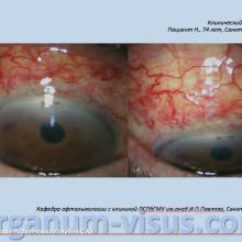 Red Eye. Клинический пример № 2. Тактика лечения после факоэмульсификации. Рисунок 2 (пояснения в тексте). Портал Орган зрения www.organum-visus.com