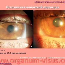 Red Eye. Клинический пример 1. Кератит. Осложнение контактной коррекции зрения (Keratitis. Complications of contact lens). Ревта А.М., Ляпушкина Т.Г., 2014г. Офтальмологический портал Орган зрения www.organum-visus.com (5)