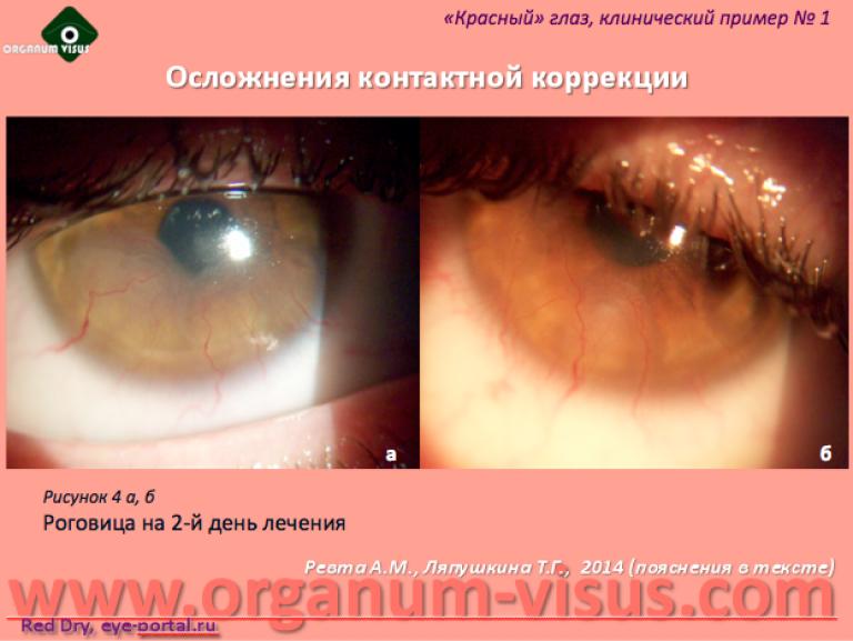 221Если осложнения после лазерной коррекции зрения